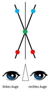 Brockschnur - optimale Wahrnehmung